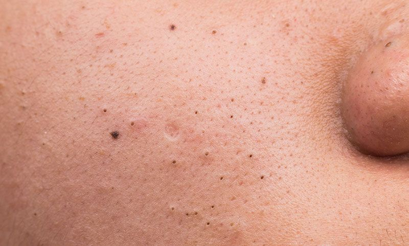 Blackheads on skin