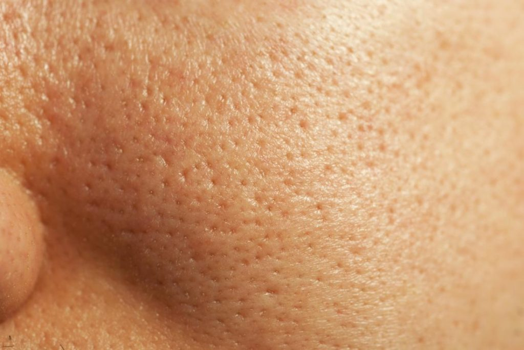 Open pores on the skin