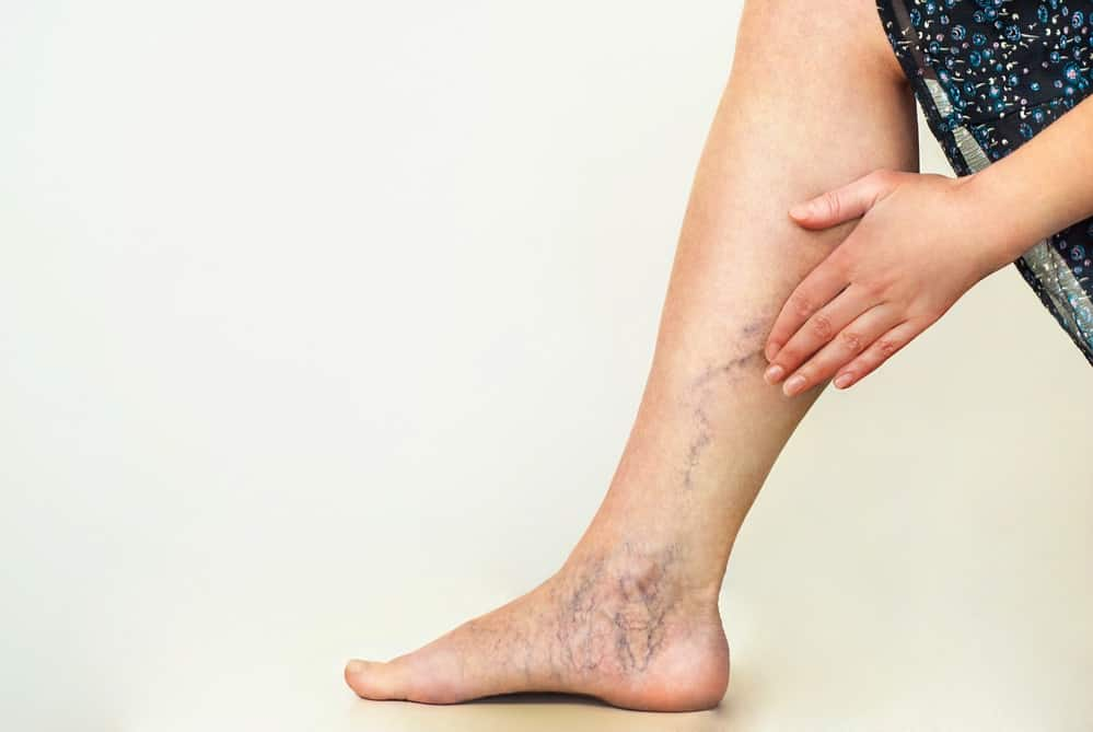 Lady holding her hand against her leg where there are varicose veins.  Essential oil blends for varicose veins.